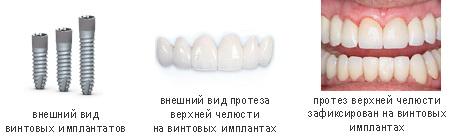 Современная имплантация зубов в Европе